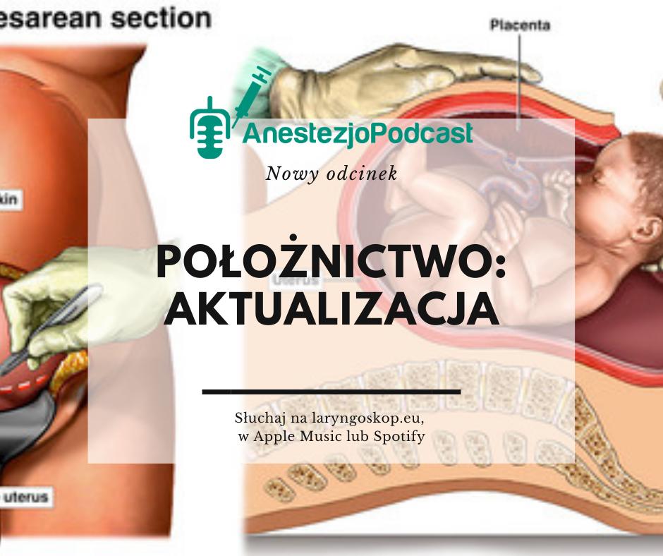 anestezjologia w połoiżnictwie aktualizacja
